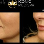 What Are Lip Fillers Used for & Where To Get Them