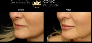 Iconic Medispa Lip Enhancement