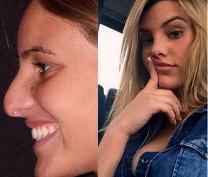Lele Pons before and after rhinoplasty by Dr. Kassir