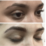 Microfeathering  A Spinoff from Microblading
