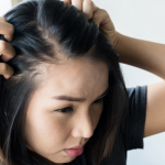 Alopecia: What it is and Ways to Deal with it