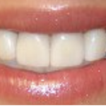 6 Dental Procedures That Will Improve Your Smile and Your Health